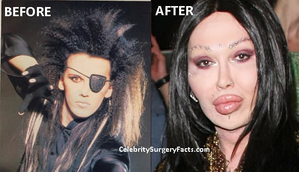 Dead Or Alive Singer Plastic Surgery Before And After 1