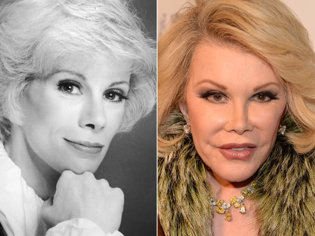 What Did Joan Rivers Look Like Before Plastic Surgery 1