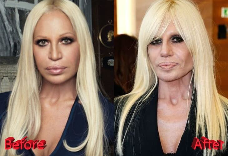 Donatella Versace Plastic Surgery Before After Photos 1