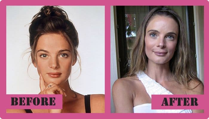 Gabrielle Anwar Plastic Surgery Before After Pictures 1