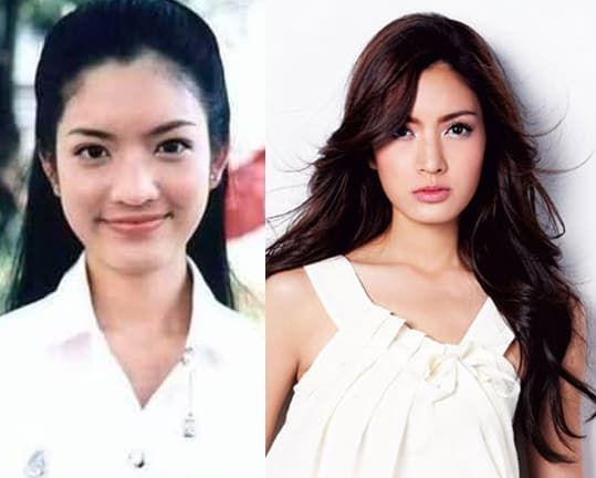 Vietnamese Celebrity Plastic Surgery Before And After 1