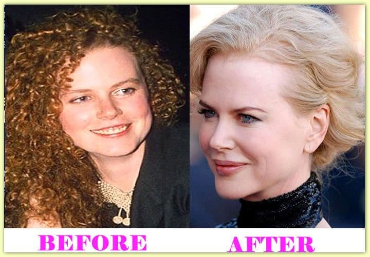Nicole Kidman Photos Before And After Plastic Surgery 1