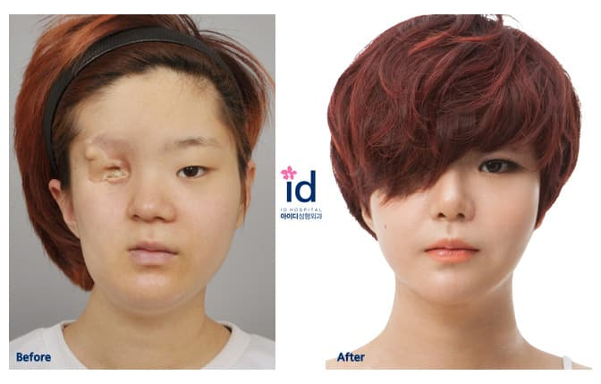 Down Syndrome Plastic Surgery Before And After Korean 1