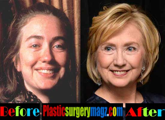 Hillary Clinton Plastic Surgery Before And After 2013 1