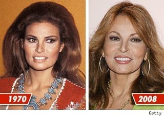 Jeanine Ferris Pirro Before And After Plastic Surgery 1