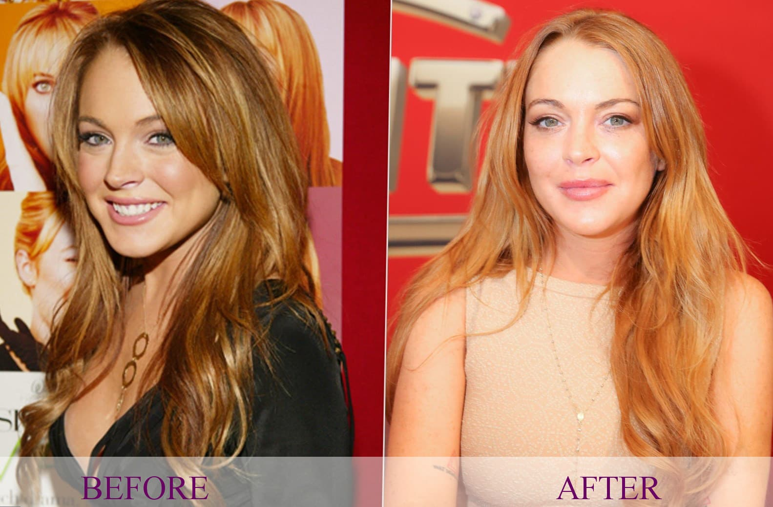 Celebrities Before And After Plastic Surgery Versace 1