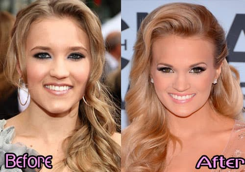 Best Celebrity Plastic Surgery Before And After Pictures photo - 1