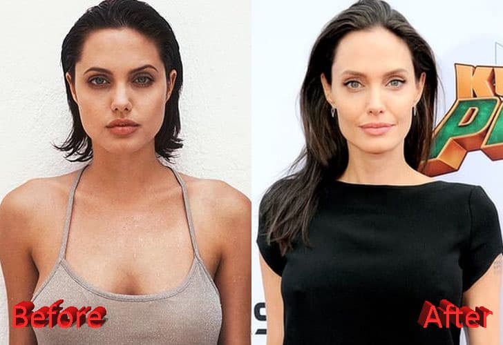 Angelina Jolie Plastic Surgery Before And After Photos 1