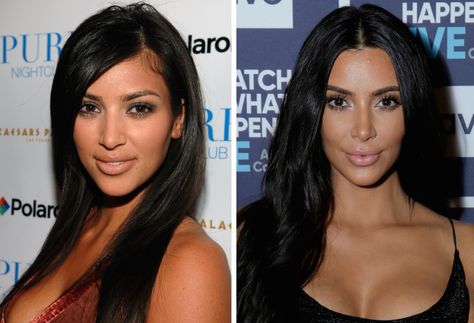 Kim Kardashians Face Before And After Plastic Surgery 1