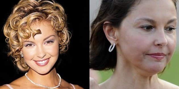 Plastic Surgery Before And After Photos Of Celebrities 1