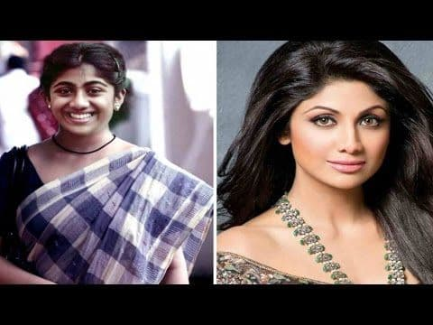 Plastic Surgery Celebrities Before And After Bollywood 1