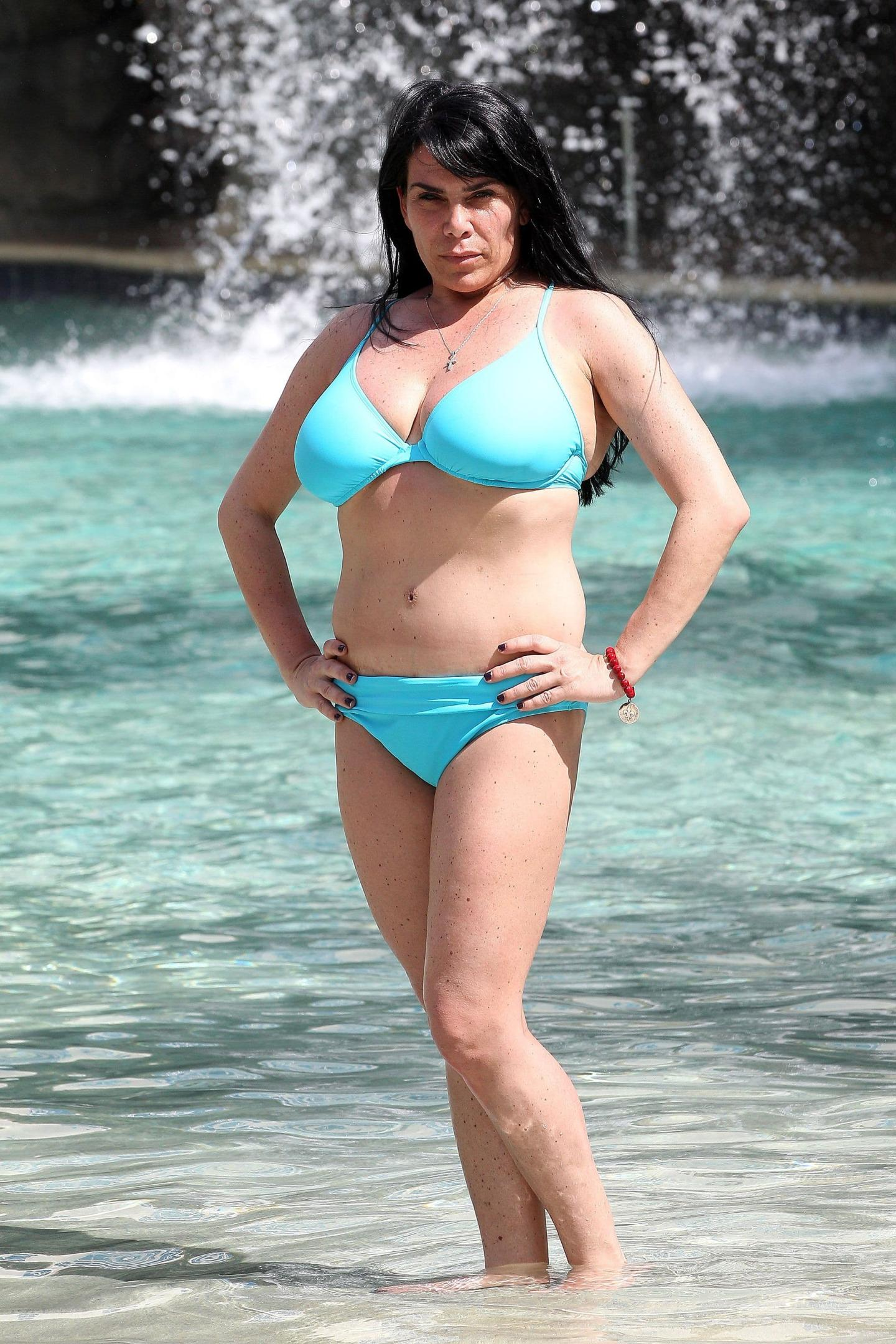Before And After Pictures Renee Graziano Plastic Surgery photo - 1