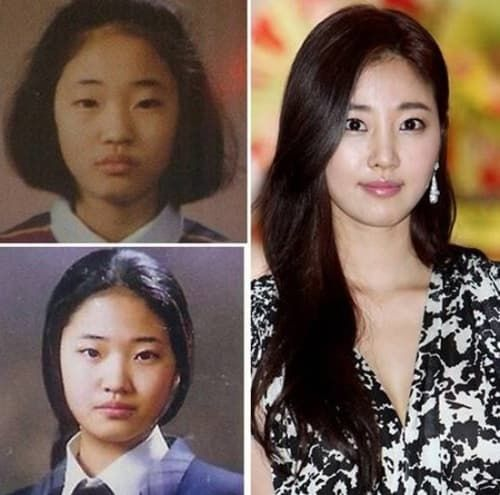 Moon Chae Won Plastic Surgery Before And After Pictures 1