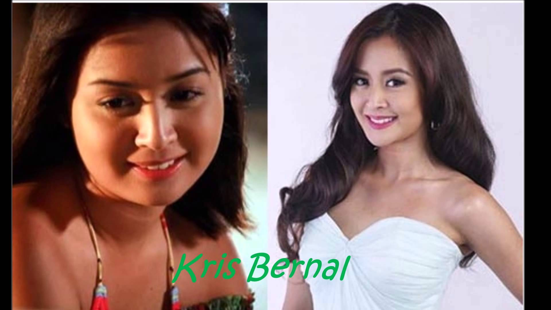 Celebrity Before And After Plastic Surgery Philippines 1
