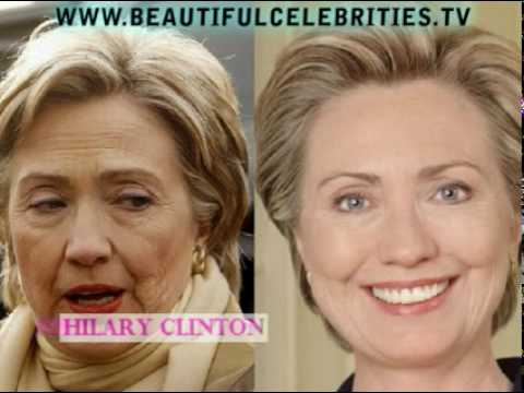 Celebrity Bad Plastic Surgery Before And After Pictures 1
