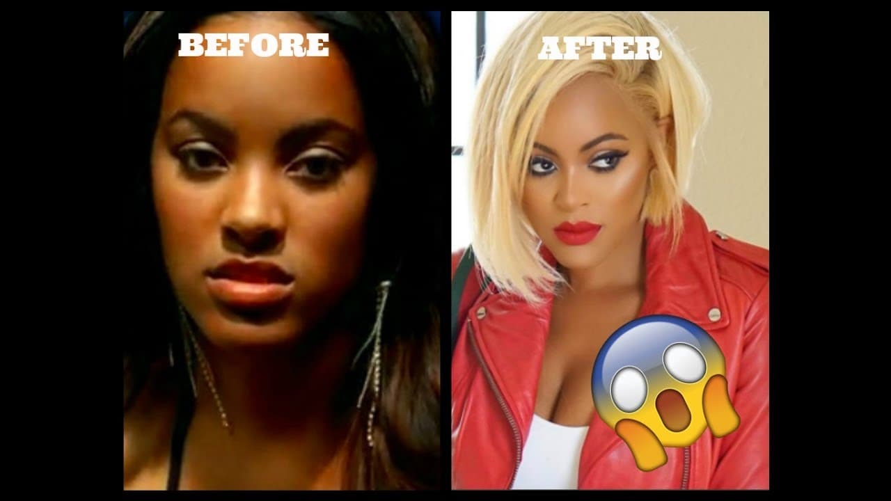 Love And Hop Hop Stars Before And After Plastic Surgery 1