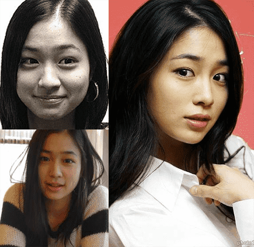 South Korean Plastic Surgery Before After Photo Journal 1