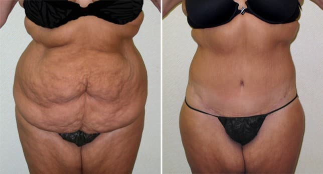 Male Plastic Surgery And Before And After And Full Body 1