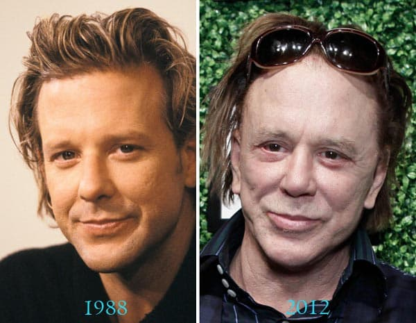 Mickey Rourke Plastic Surgery Before And After Pictures 1