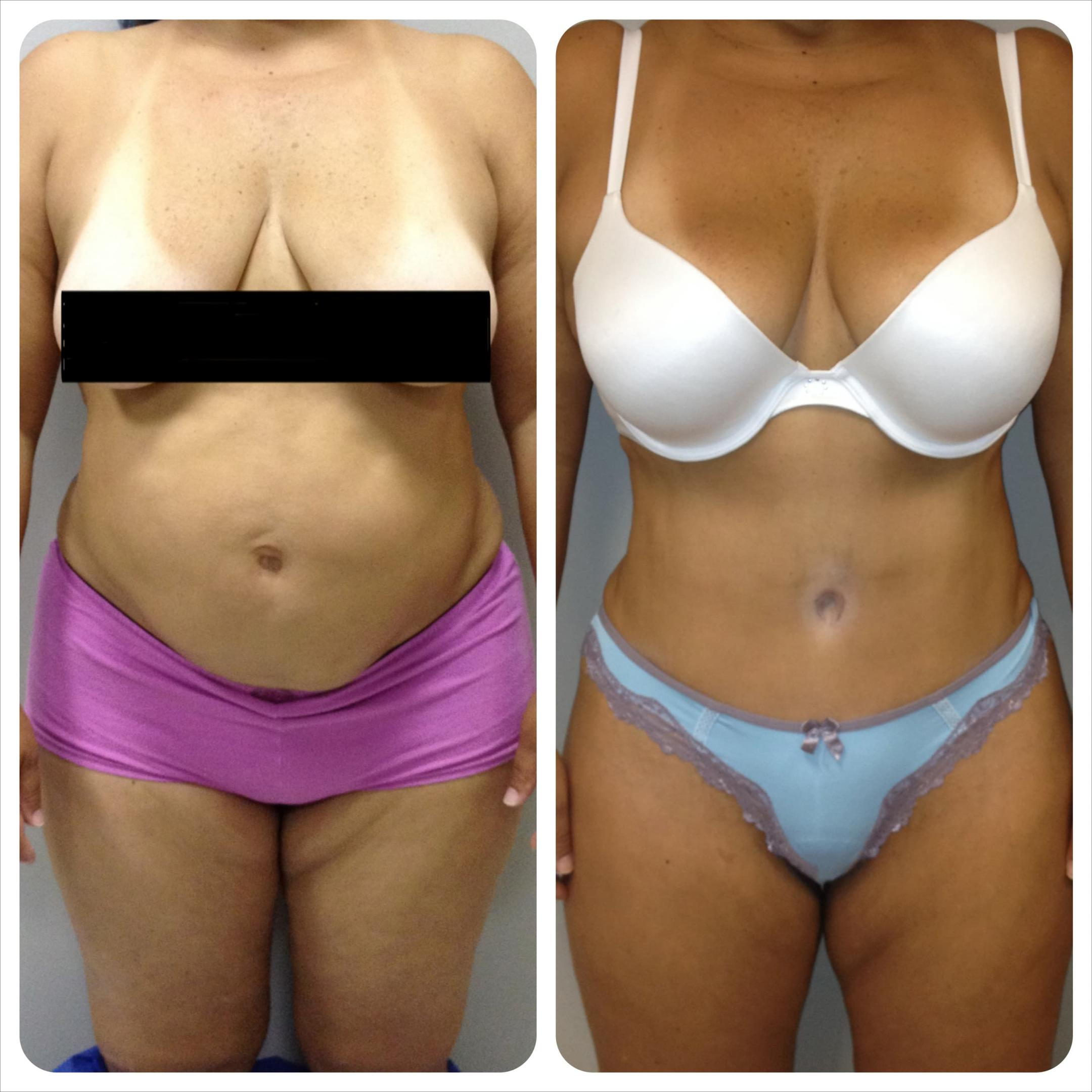 Plastic Surgery Stomach Stretch Marks Before And After 1