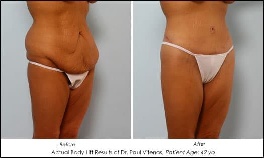 Plastic surgery to remove excess skin after weight loss 1