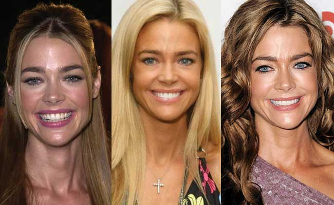 Sofia Vergara Plastic Surgery Before And After Pictures 1