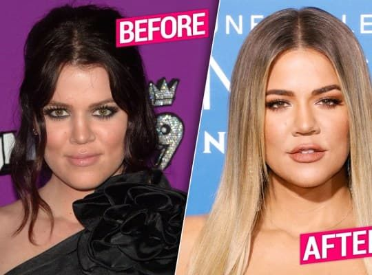 Khloé Kardashian Before And After Plastic Surgery photo - 1
