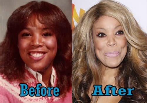 What Did Wendy Williams Look Like Before Plastic Surgery 1