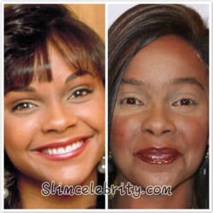 Plastic Surgery Skin Lightening Before And After 1