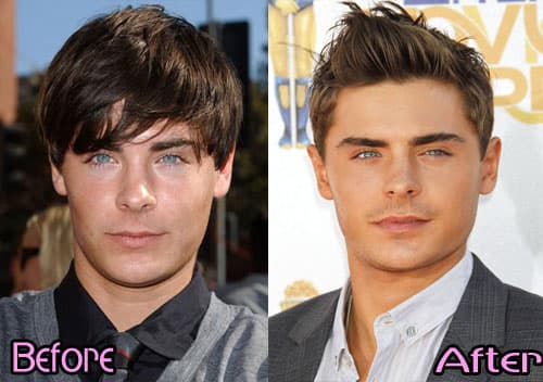 Before And After Pic Of Male Celebrities Plastic Surgery 1