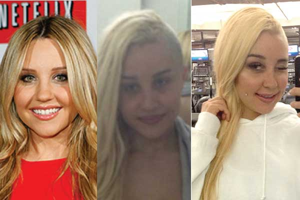 Heather Locklear Before And After Plastic Surgery Photos 1