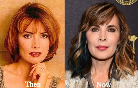 Before And After Photos Of Lauren Koslow Plastic Surgery 1