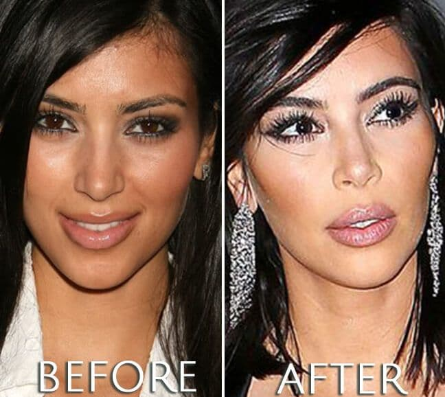 Kim Kardashian Plastic Surgery Before And After Pictures 1