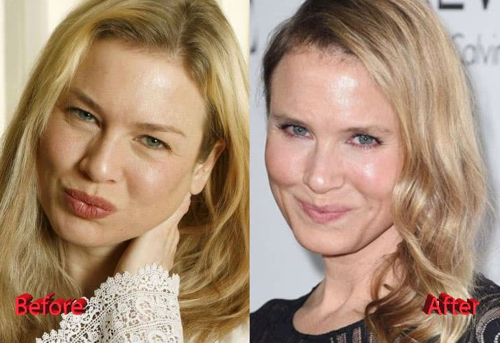 Renée Zellweger Before And After Plastic Surgery 1