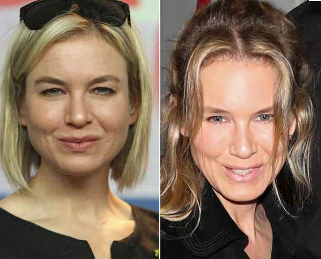 Renee Zellweger Plastic Surgery Before And After Pictures 1