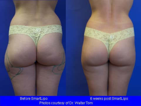 Before And After Pics Of Muffin Top Plastic Surgery Women 1