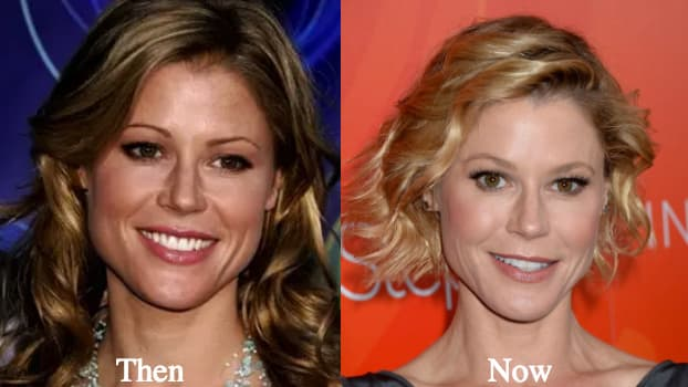 Did Julie Bowen Have Plastic Surgery Before Modern Family 1