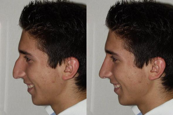 Discovery Health Channel Plastic Surgery Before And After 1