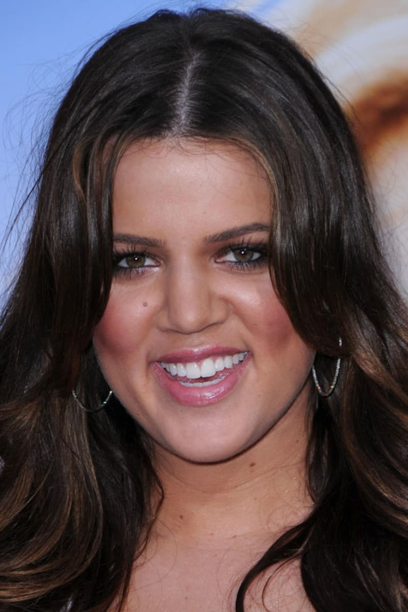 Before And After Plastic Surgery Pics Of Khloe Kardashian 1