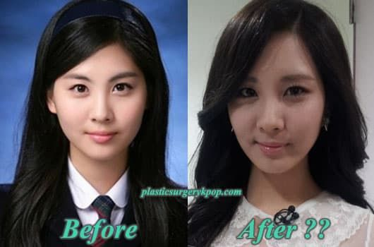 Girls Generation Members Before And After Plastic Surgery 1