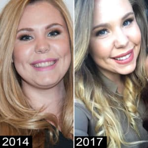 Kailyn Lowry Plastic Surgery Before And After Pics 1