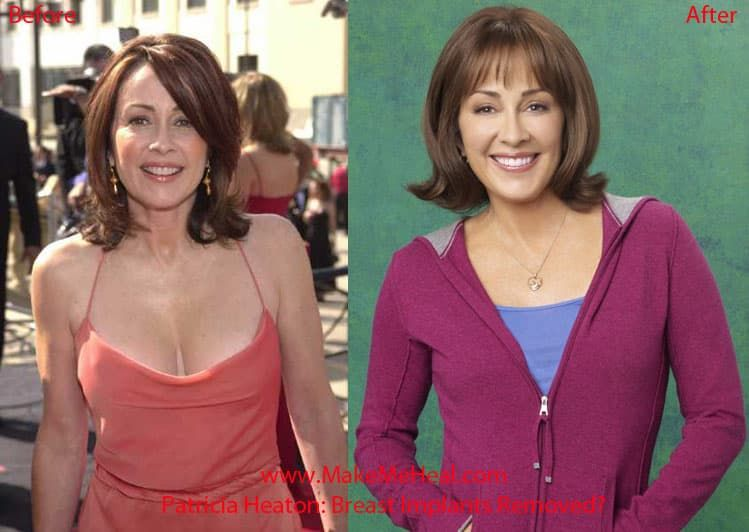 Photos Of Patricia Heaton Before Plastic Surgery And After 1