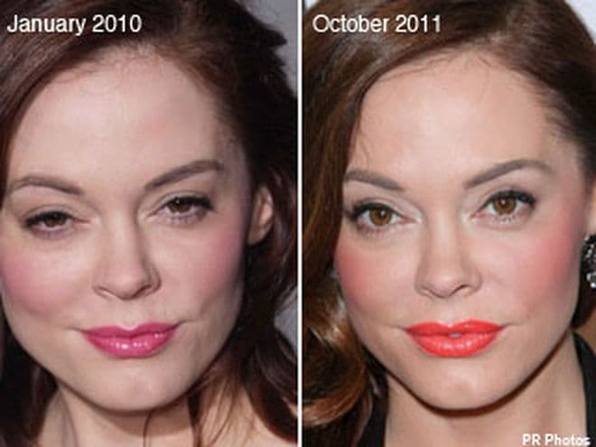 Plastic Surgery Farther Apart Eyes Korea Before After Best 1