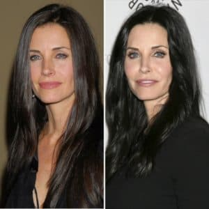 A Before And After Of Courteney Cox Plastic Surgery 1