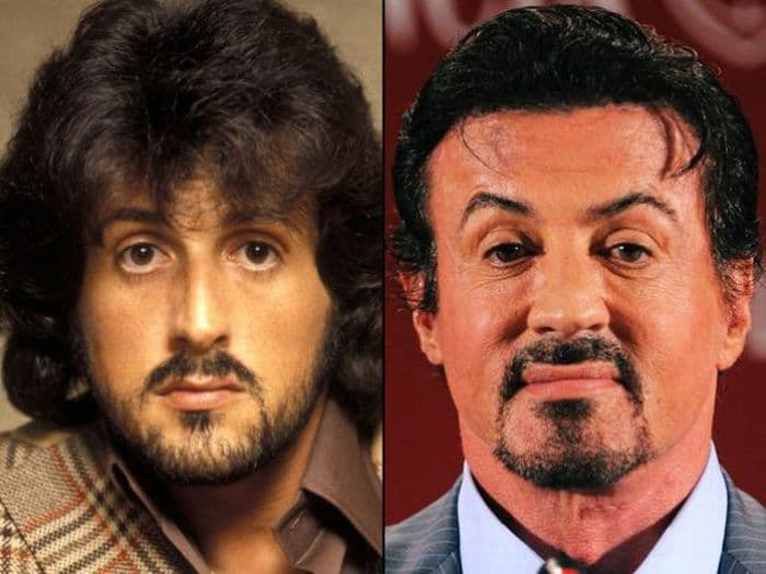 Sylvester Stallone Before And After Plastic Surgery Rocky 3 1