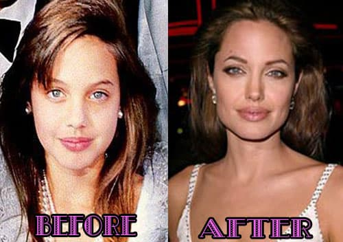What Did Farrah Abraham Look Like Before Her Plastic Surgery 1