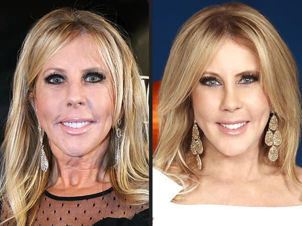 Gretchen Real Housewives Orange County Before Plastic Surgery 1