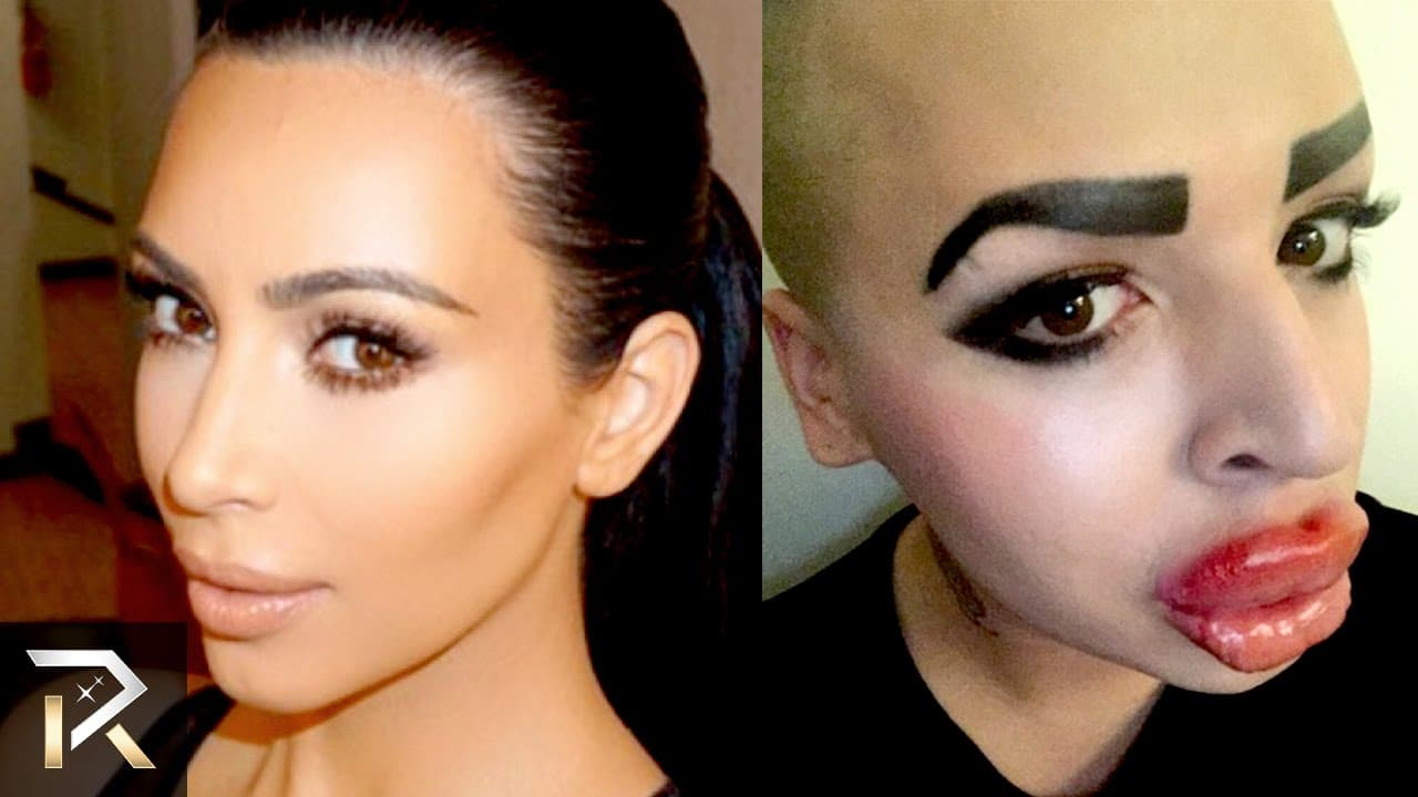 People Who Have Had Horrible Plastic Surgery Before And After 1