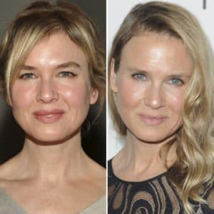 Renée Zellweger Right Before Plastic Surgery 1