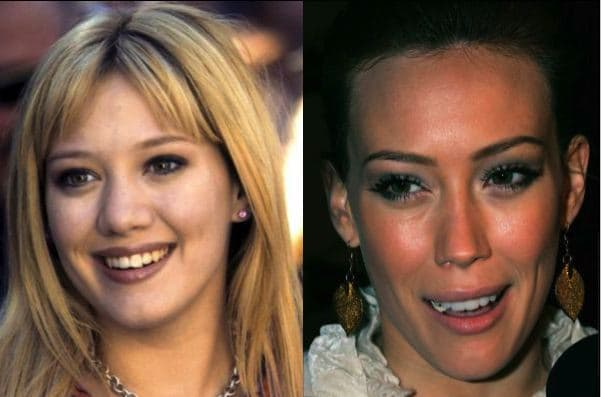 Celebrity Plastic Surgery Gone Wrong Before And After Pictures 1
